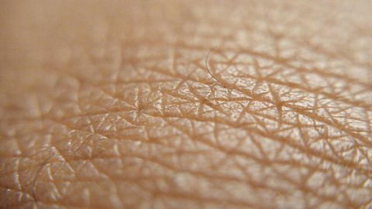 30代の毛穴が広がる理由とスキンケア
